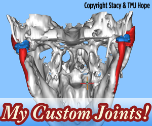 Custom TMJ Total Joint Replacements